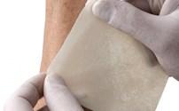 Honingverband, Mesitran Tulle, Antibacterieel, Klinion
