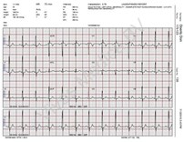 Apparatuur, ECG, Schiller, SCS, Schiller Communication Software